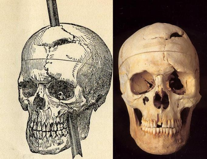 phineas_gage_1868_skull
